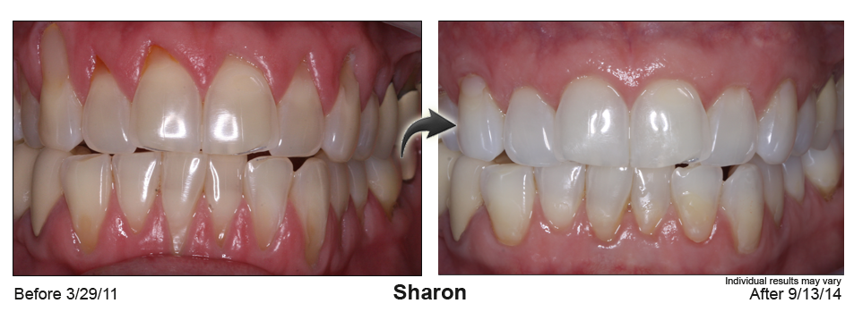 gum recession treatment Deerfield Beach, Florida